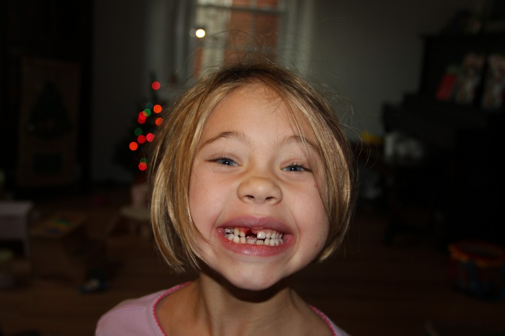 The after picture: Anna proudly shows her missing front tooth