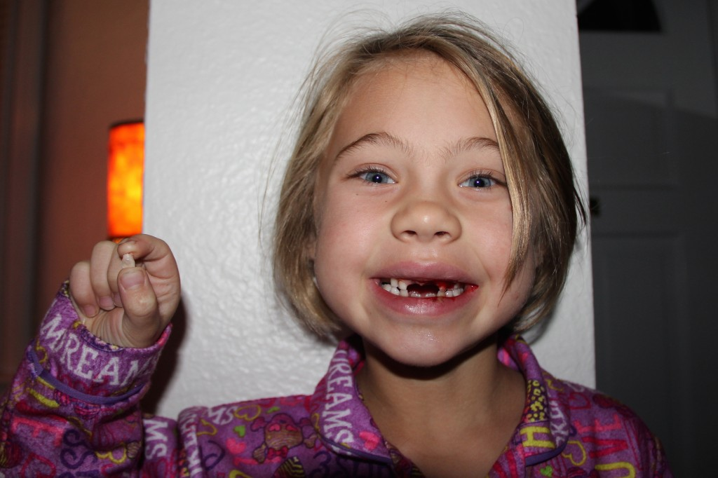 Anna pulls her second front tooth out by herself one week after losing for other front tooth
