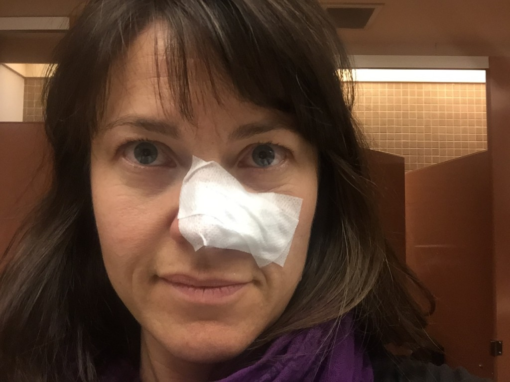 Marcy gets some skin cancer removed from her nose